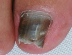 missfärgade naglar