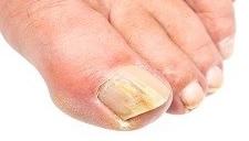 nagelsvamp tabletter biverkningar