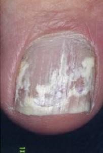 Vit nagelsvamp