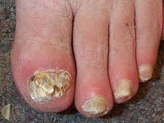 Gul nagelsvamp